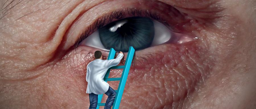 视网膜裂孔